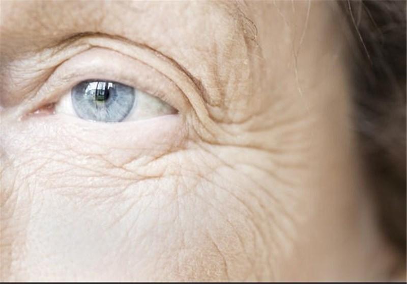 ترفند های درمانی چروک زیر چشم