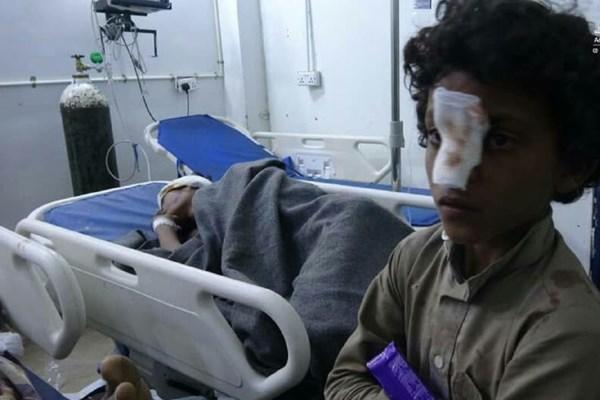 جنایت جدید ائتلاف سعودی علیه غیرنظامیان در مأرب