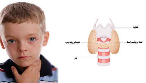 کم کاری تیروئید در نوزادان؛ علائم و راه های درمان